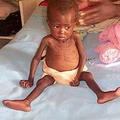 位於辛巴威營養不良的小孩。圖片來源:Iowa DOT