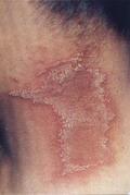 隱翅蟲被打死後所造成的皮膚大片面積感染。圖片來源:呂耀卿《中國人皮膚病圖譜》